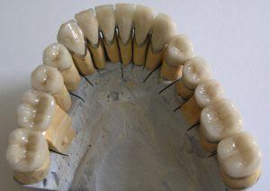 Металлокерамический мостовидный протез